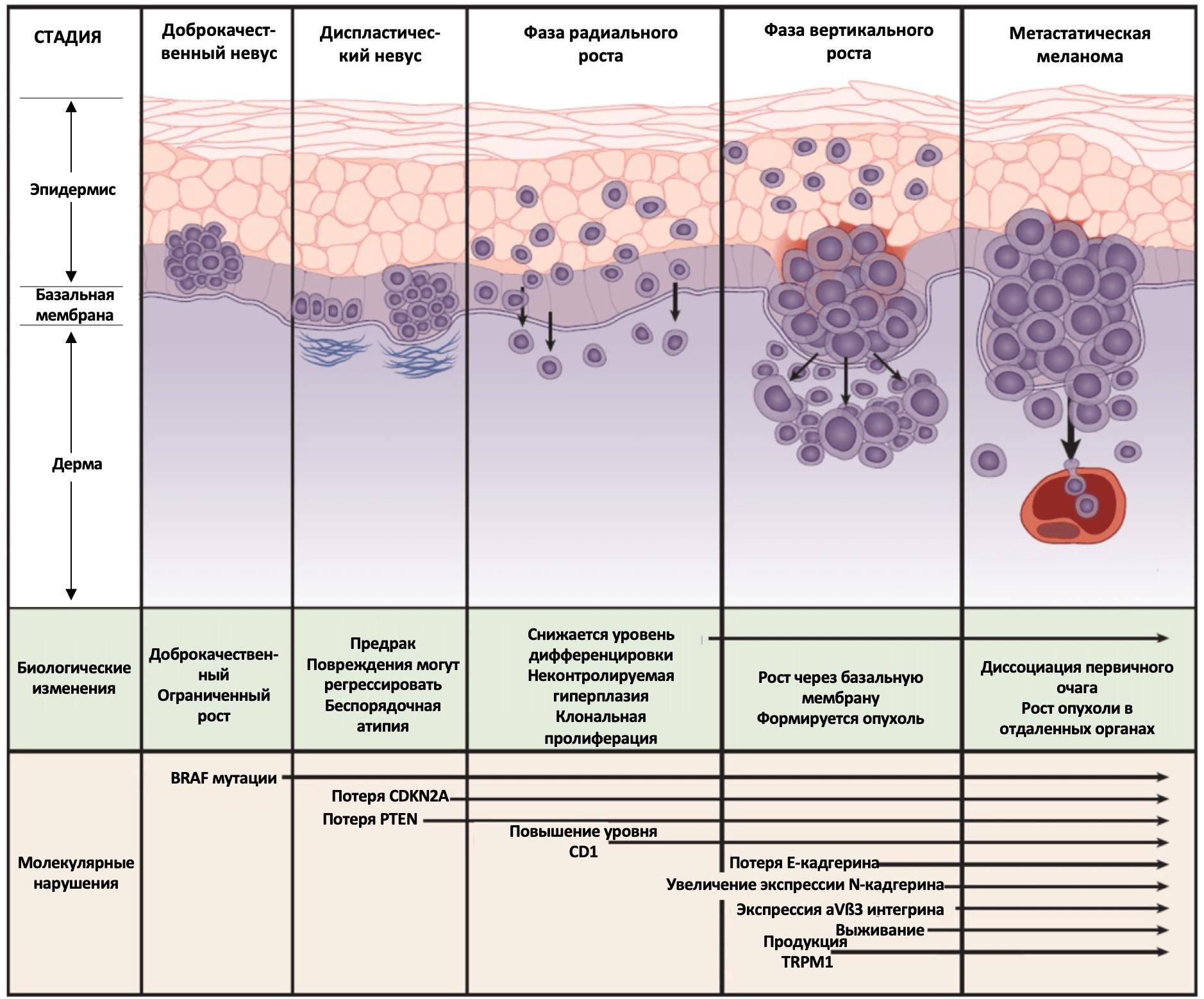 Биологические изменения и молекулярные нарушения при развитии меланомы кожи
