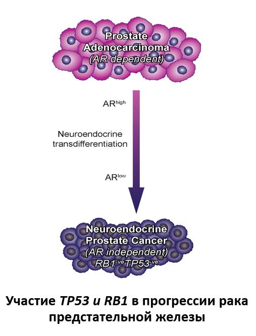 Участие TP53 и RB1 в прогрессии рака предстательной железы