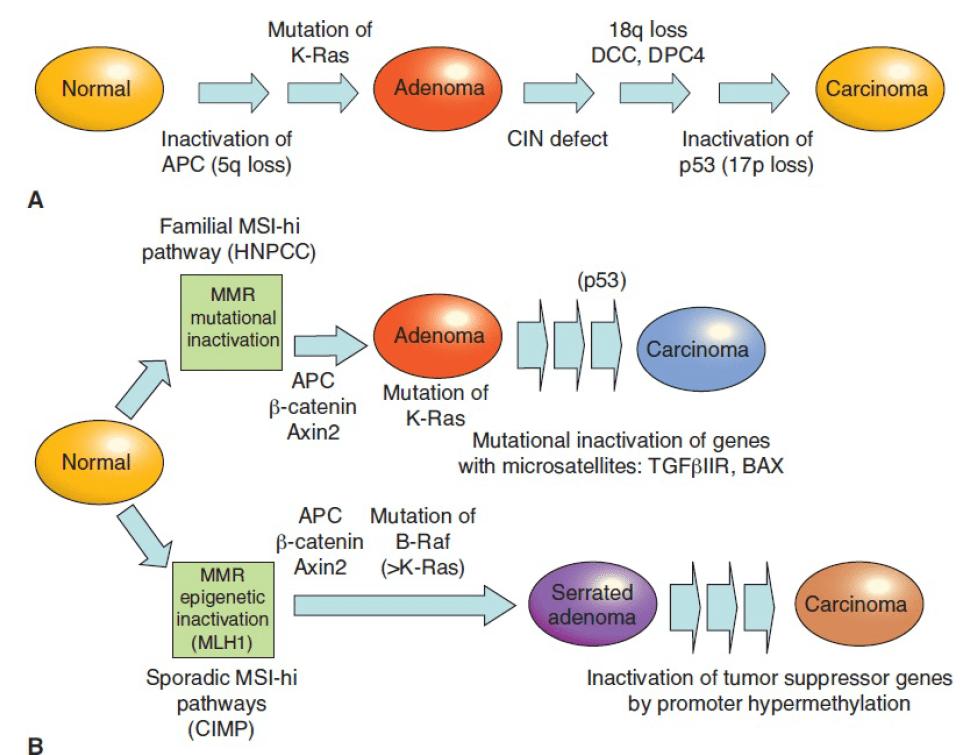 Генетические механизмы возникновения колоректальной карциномы