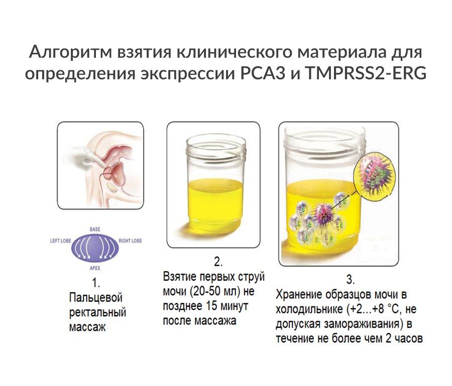 Алгоритм взятия клинического материала для определения экспрессии PCA3 и TMPRSS2-ERG