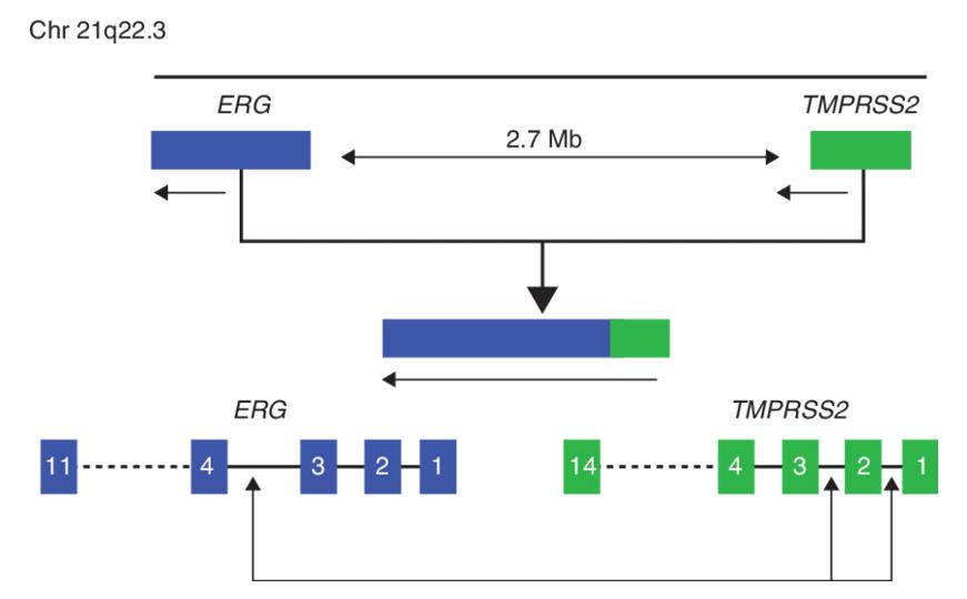 Схема транслокации TMPRSS2-ERG